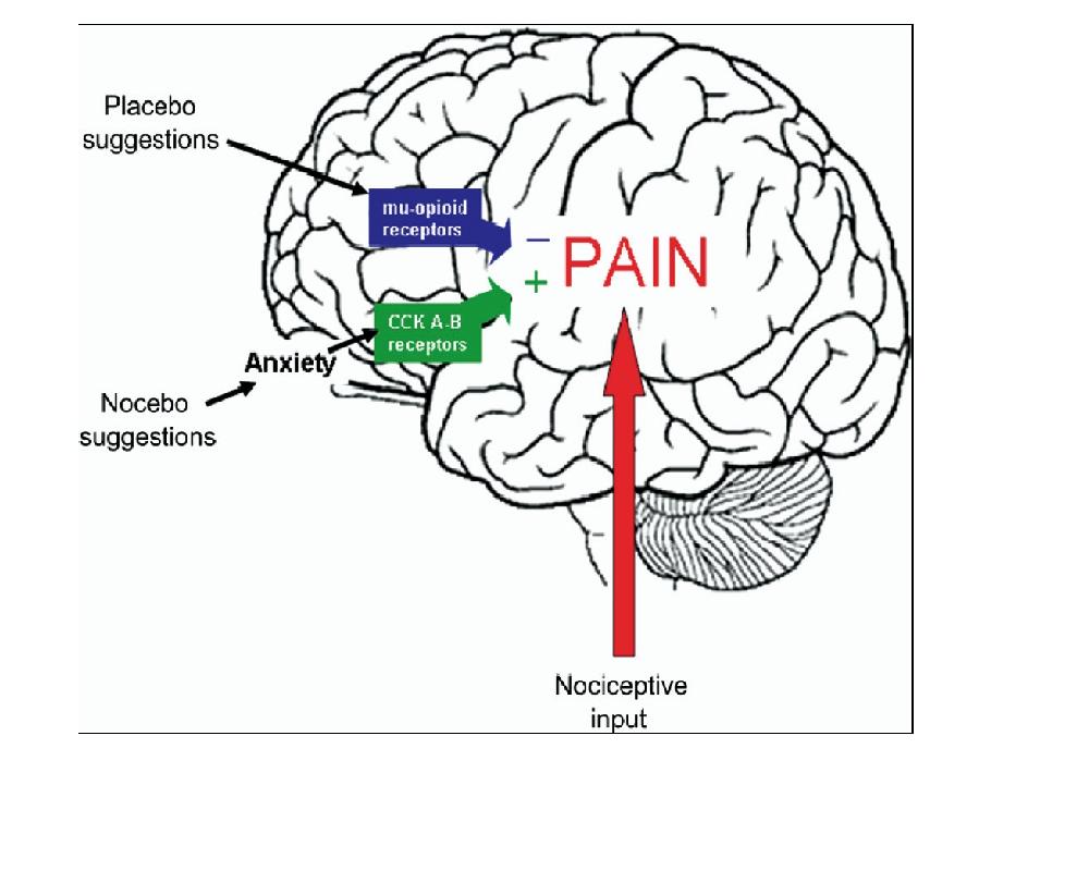 El efecto placebo: un poco de neurociencia aplicada (2/2)